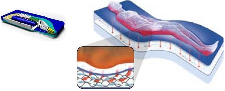 Wound Care Bed Surfaces | VersaCare P500 Surface
